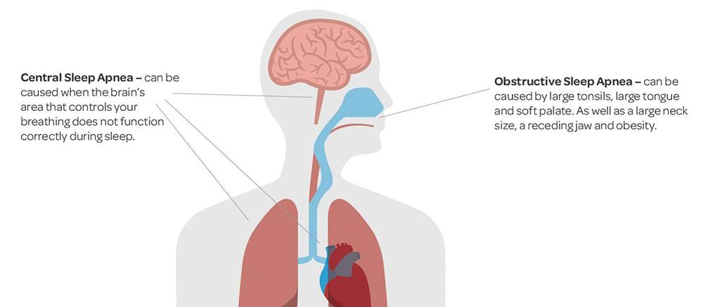 Types of Sleep Apnea Disorders   Sleep Restfully