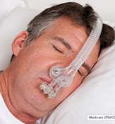 TAP PAP Nasal Pillow Mask - No Headgear Needed